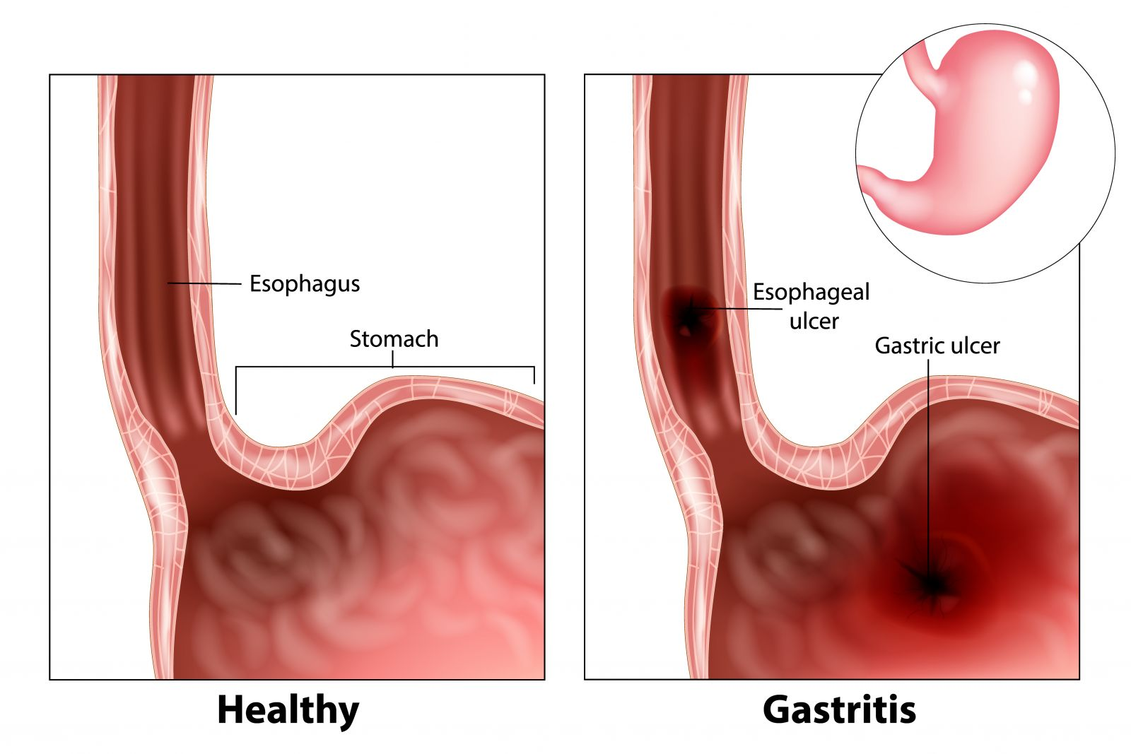 gastritis GettyImages 1127138614